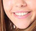 blanqueamiento dental chamartín